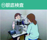 ⑪眼底検査